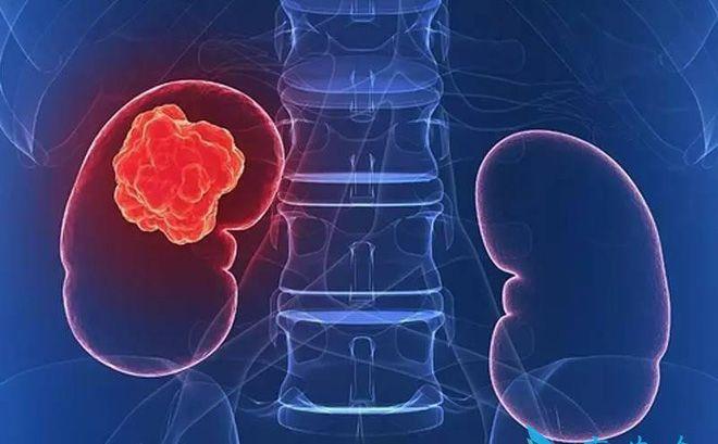 Ở giai đoạn ung thư thận di căn kích thước khối u đã khó xác định