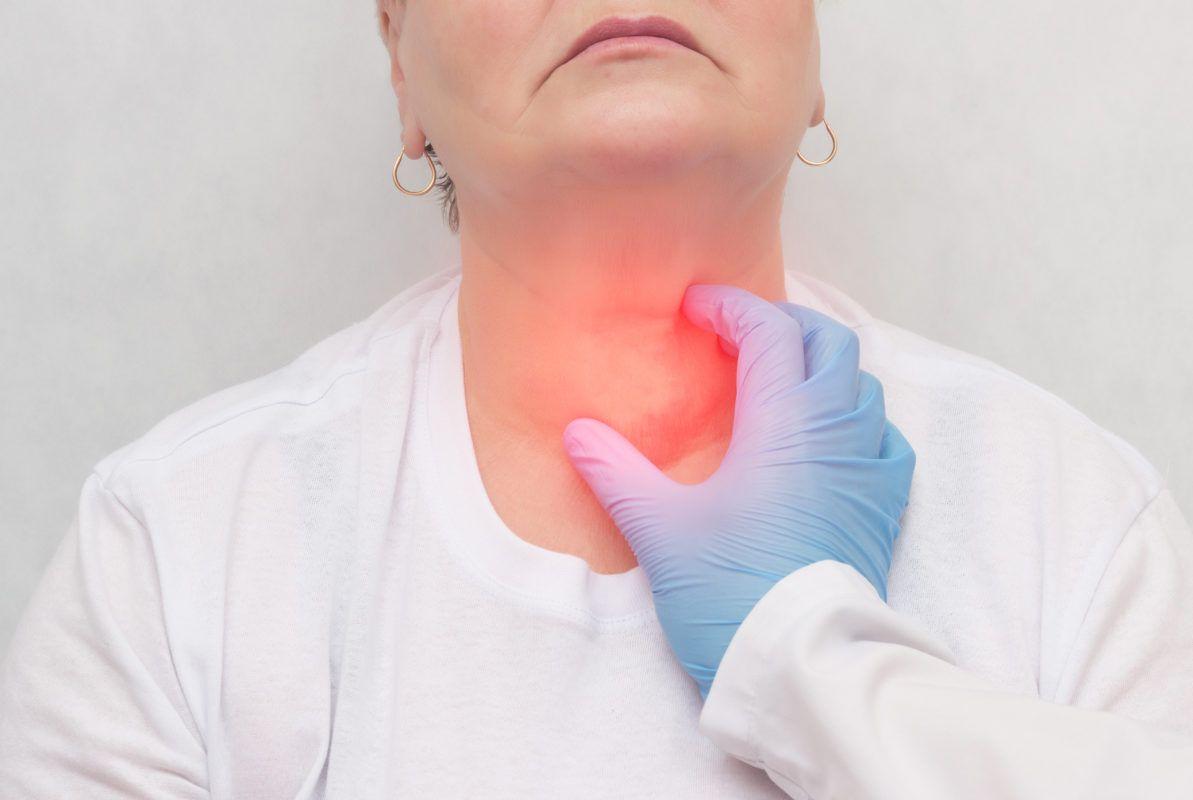 Ung thư tuyến giáp khởi phát từ sự phát triển bất thường ở tuyến giáp