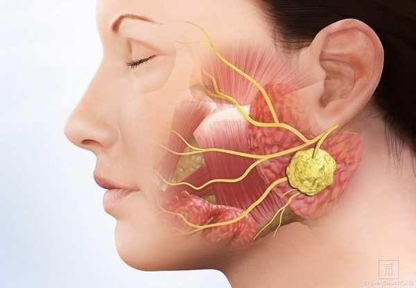 Ung thư tuyến nước bọt là căn bệnh hiếm gặp