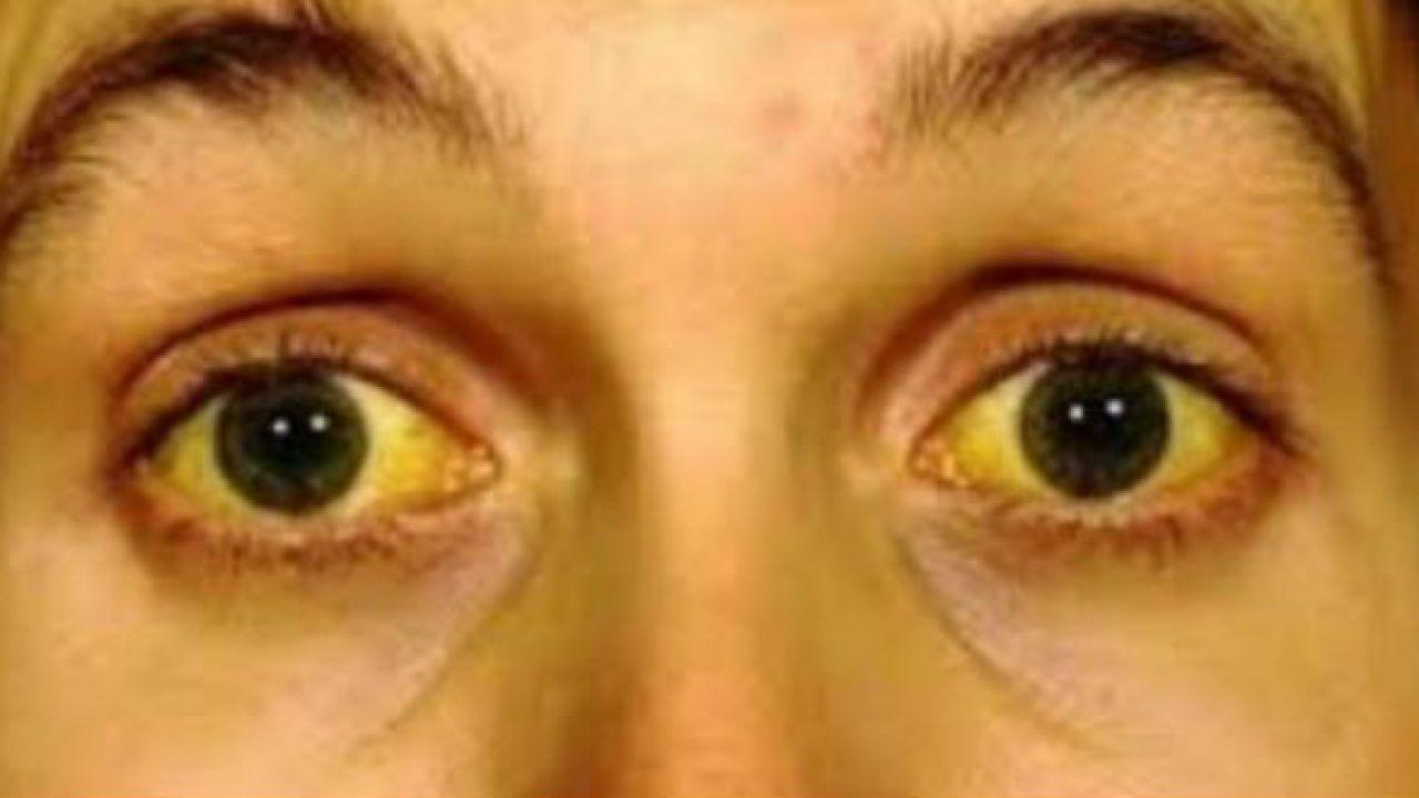 Vàng da, vàng mắt là một trong những triệu chứng của ung thư tuyến tụy