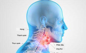 Bệnh ung thư vòm họng có biểu hiện như thế nào?