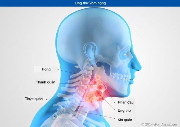 Ung thư vòm họng phổ biến trong các bệnh ung thư đầu cổ
