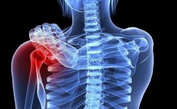 Những triệu chứng của ung thư xương và chẩn đoán bệnh