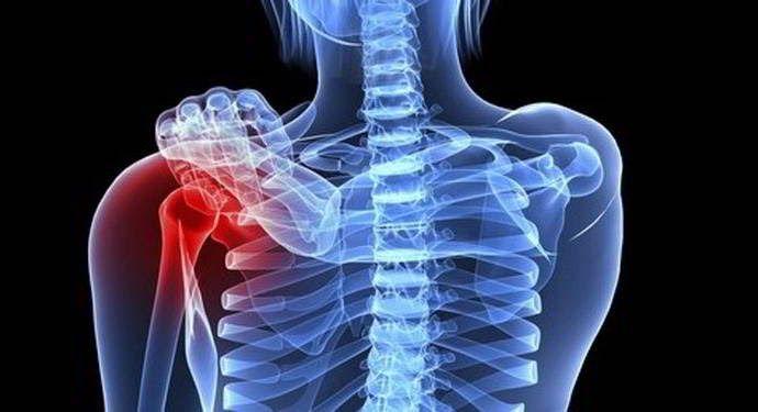 Ung thư xương bắt đầu từ các tế bào trong xương