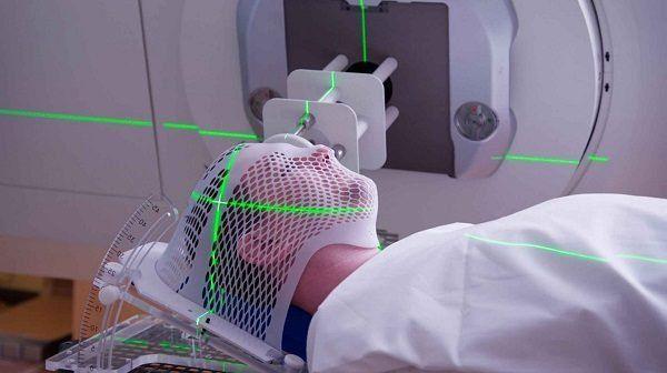 Xạ trị là một trong những phương pháp chính điều trị ung thư vòm họng