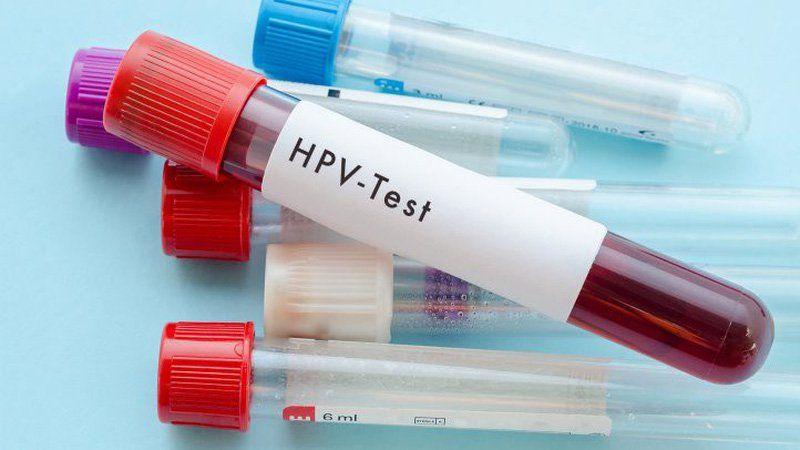Xét nghiệm HPV được sử dụng cho phụ nữ trên 30 tuổi, thường thực hiện kết hợp cùng xét nghiệm Pap