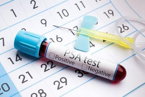 Xét nghiệm PSA là phương pháp giúp phát hiện ung thư tiền liệt tuyến ngay từ những giai đoạn đầu