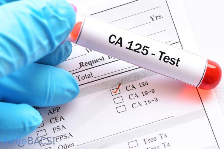 Xét nghiệm CA 125 giúp phát hiện ung thư máu