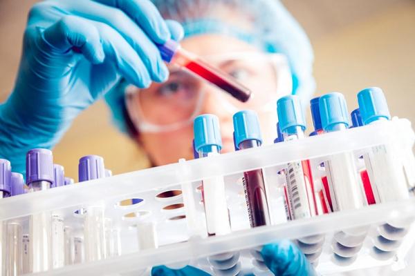 Xét nghiệm đông máu có thể giúp xác định vết bầm tím do ung thư hay nguyên nhân khác