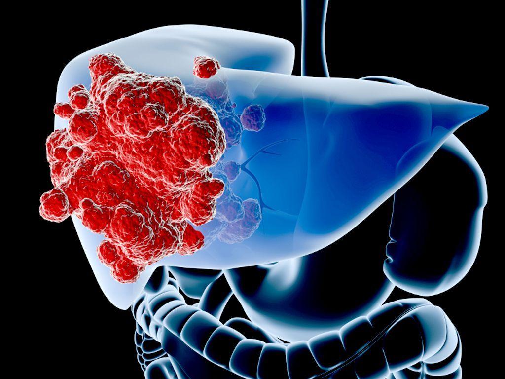 Bệnh ung thư gan bắt đầu từ sự phát triển và nhân lên bất thường của các tế bào tại gan