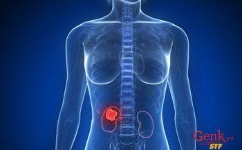 Người bị bệnh ung thư thận cần lưu ý gì trong chế độ dinh dưỡng