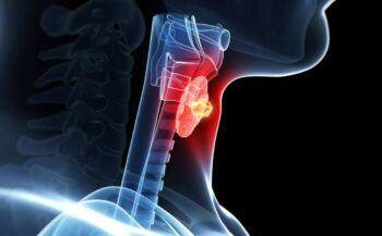 Tìm hiểu về bệnh ung thư tuyến giáp di căn