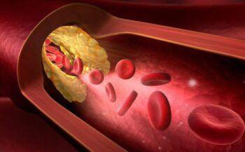 Mách bạn cách giảm mỡ máu nhanh nhất