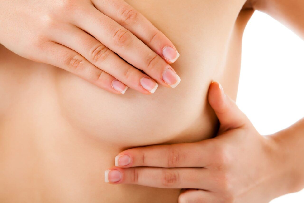 Nổi cục cứng ở vú có thể là dấu hiệu ung thư vú