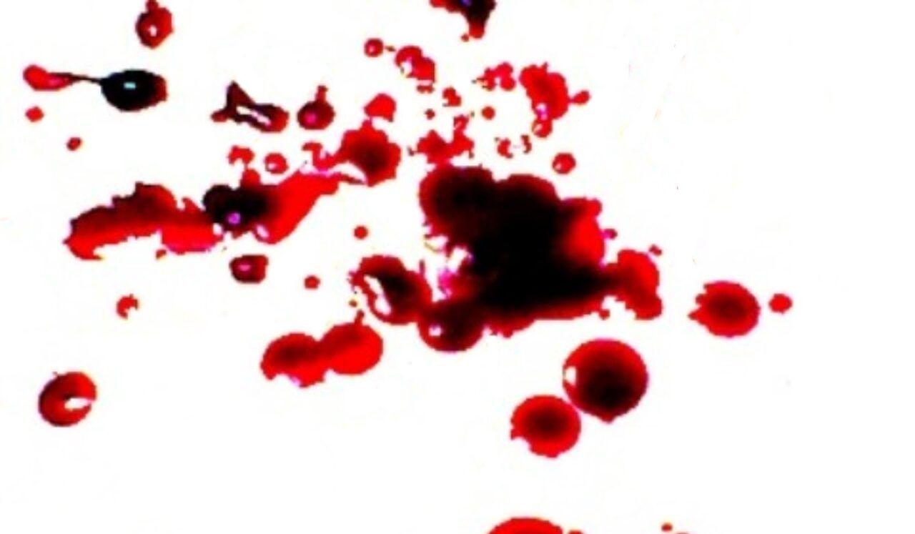 Nôn ra máu là dấu hiệu của ung thư dạ dày giai đoạn cuối