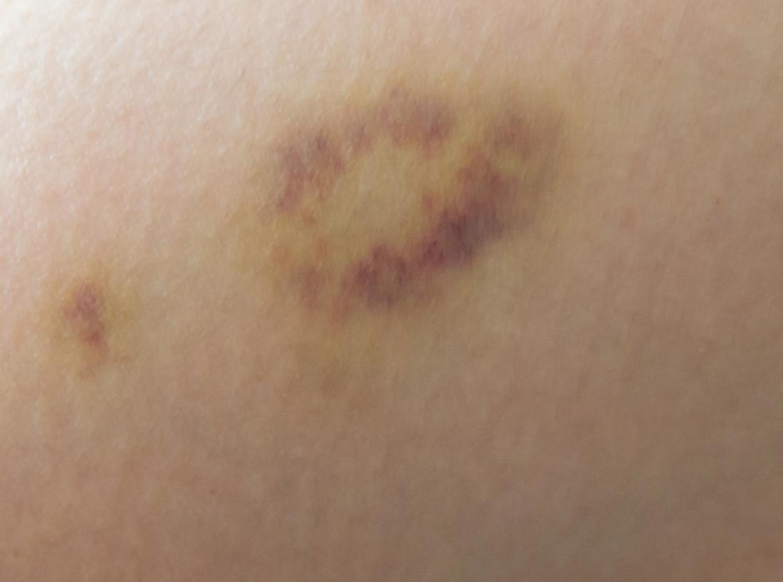 Xuất hiện vết bầm tím trên da là một trong những dấu hiệu ung thư máu ở trẻ