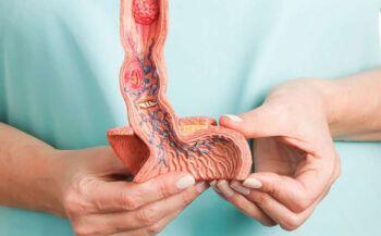 Dấu hiệu ung thư thực quản và cách điều trị hiệu quả