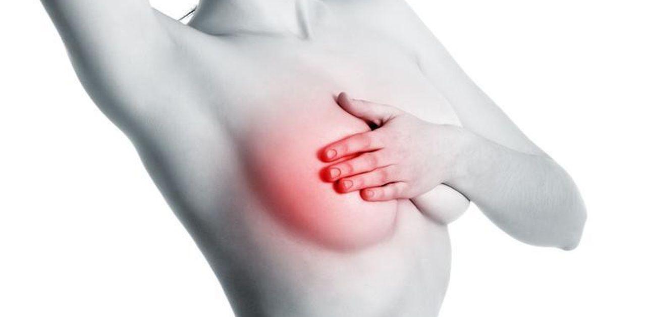 Đau tức tuyến vú là dấu hiệu ung thư vú điển hình