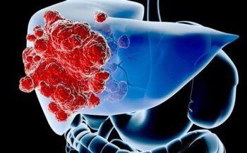Triệu chứng và phương pháp điều trị ung thư gan