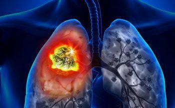 Điều trị ung thư phổi bằng những phương pháp nào