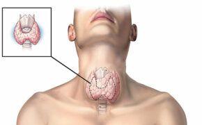 Phương pháp chẩn đoán bệnh và điều trị ung thư tuyến giáp