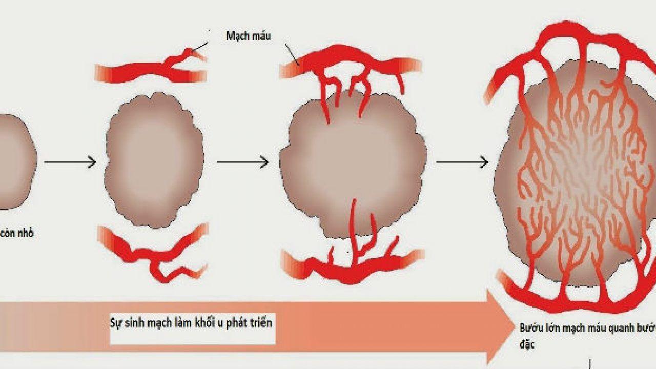 Fucoidan giúp ngăn chặn hình thành mạch máu mơid nuôi dưỡng tế bào ung thư
