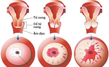 Cảnh báo nhóm đối tượng dễ mắc ung thư cổ tử cung