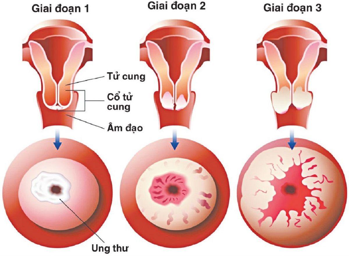 Ung thư cổ tử cung là bệnh lý ác tính hình thành trong các mô cổ tử cung