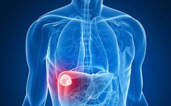Dấu hiệu bệnh ung thư gan ai cũng cần biết