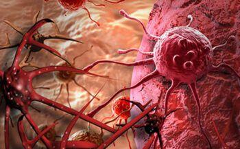Sự hình thành và phát triển của tế bào ung thư – Cơ sở sinh học về khối u