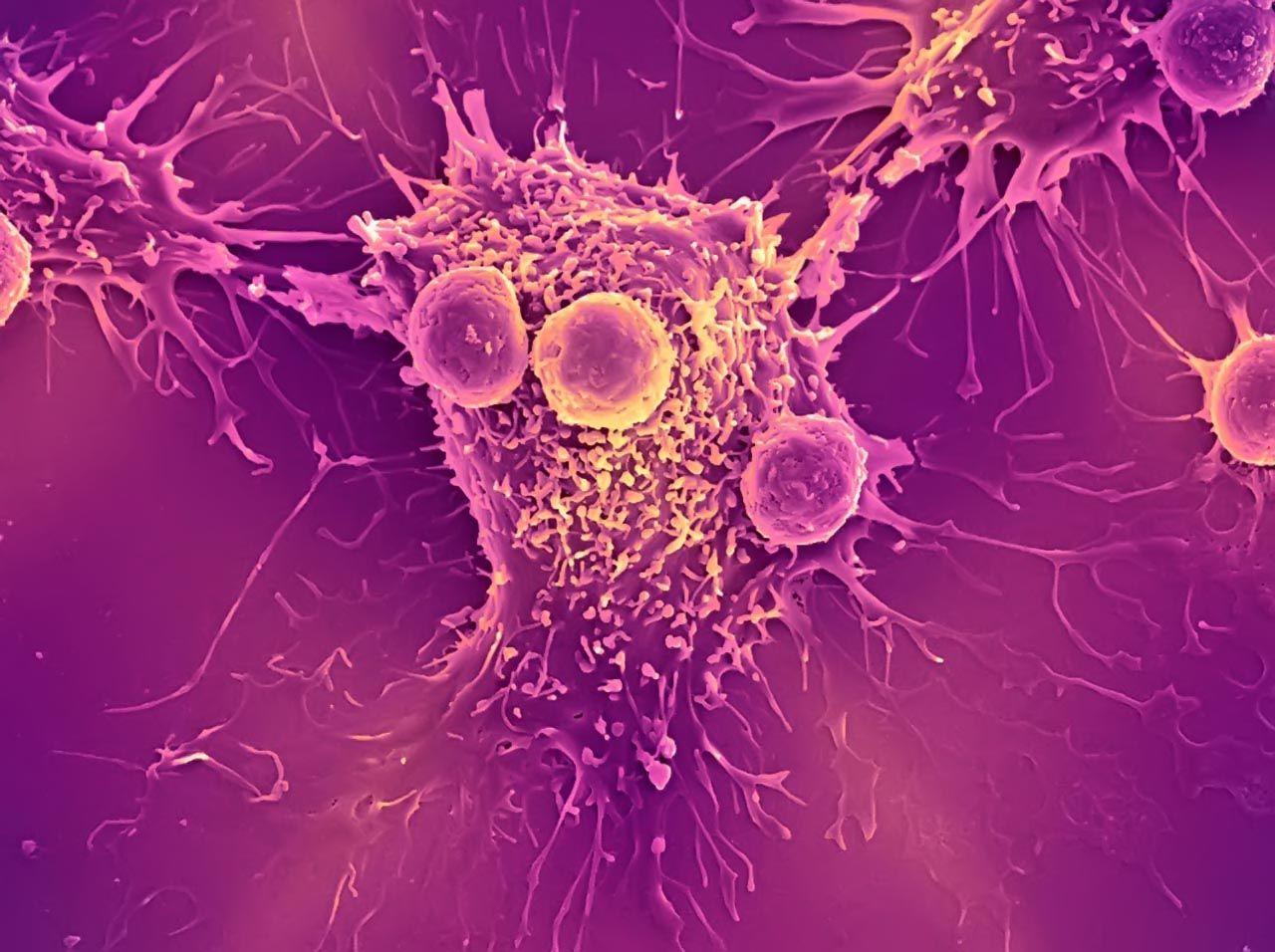 Điều trị trúng đích ung thư phổi hay điều trị bằng thuốc nhắm mục tiêu vào những bất thường cụ thể có trong các tế bào ung thư