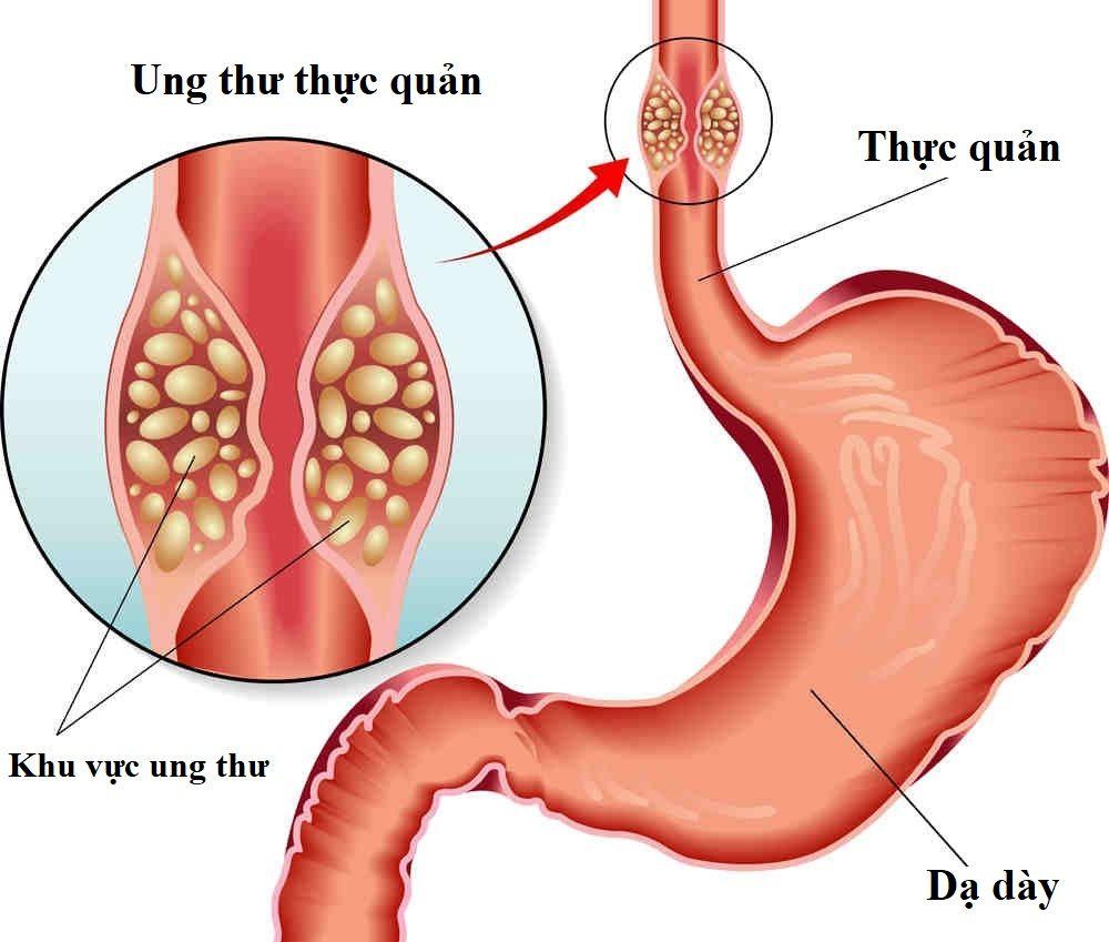 Ung thư thực quản di căn là khi ung thư đã lây lan sang các bộ phận khác của cơ thể