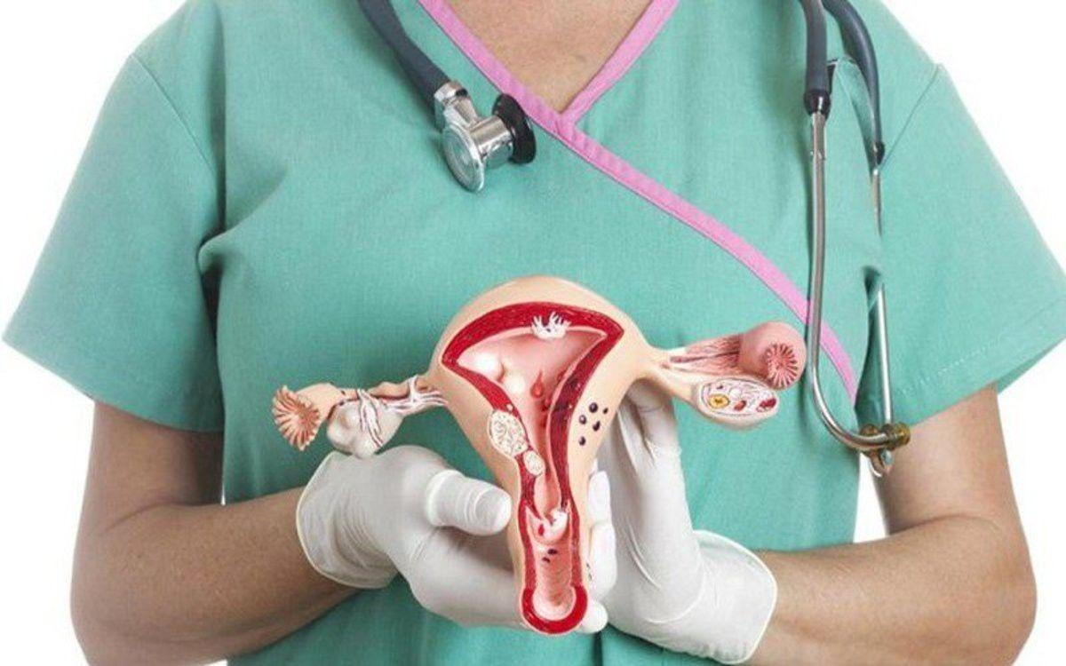 Ung thư buồng trứng là bệnh lý nguy hiểm ở nữ giới
