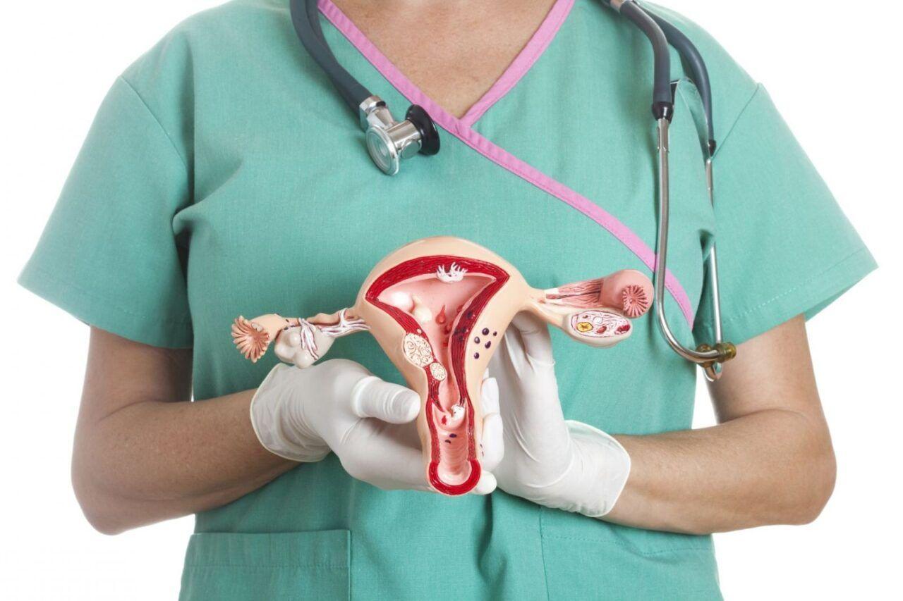 Triệu chứng ung thư cổ tử cung thường không rõ rệt ở giai đoạn sớm