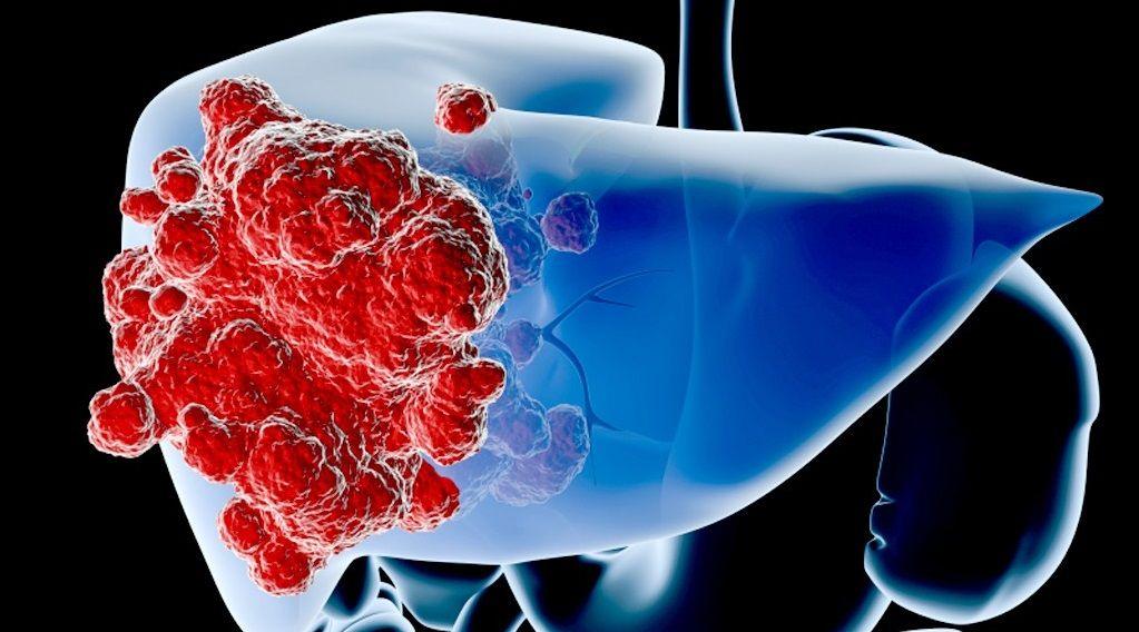Vị trí tế bào ung thư dạ dày di căn phổ biến nhất là gan, chiếm 48% tổng số bệnh nhân ung thư dạ dày di căn