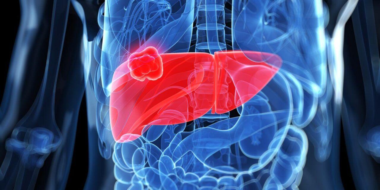 Biểu hiện ung thư dạ dày di căn sang gan rất phức tạp, có thể bao gồm cả triệu chứng tại vị trí ung thư khởi phát và di căn đến