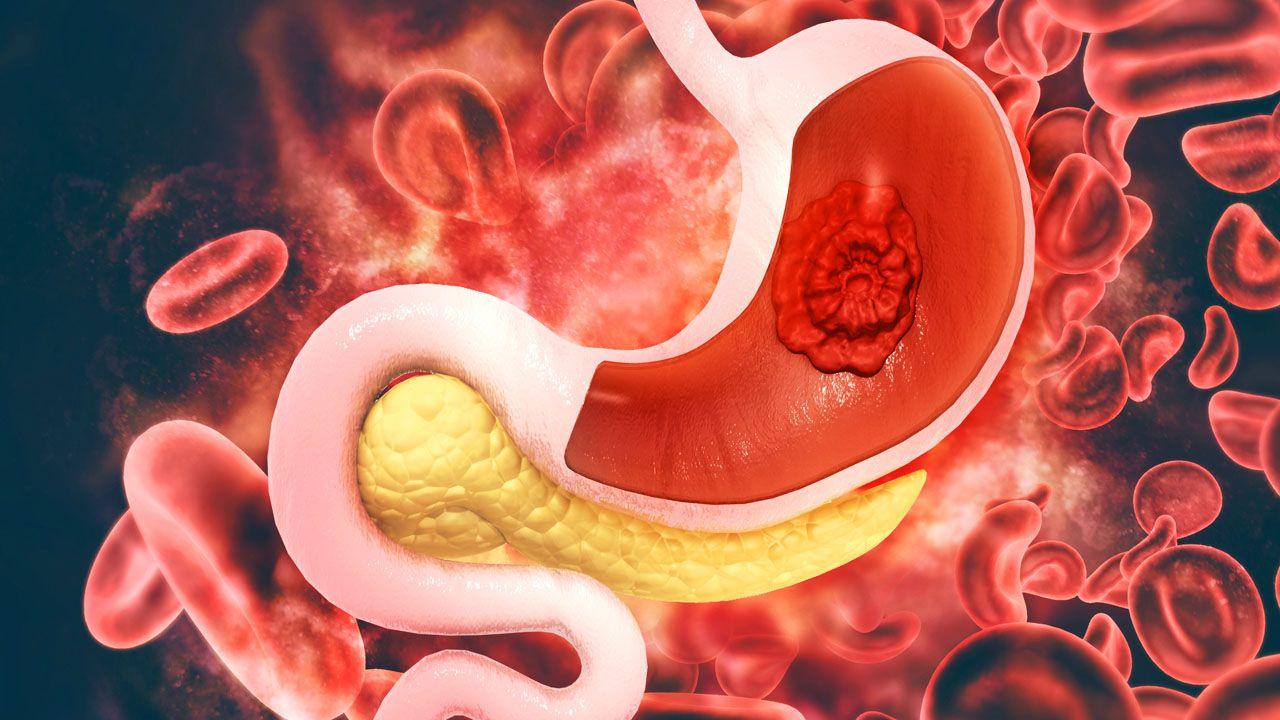 Ung thư dạ dày giai đoạn cuối đã di căn đến các bộ phận khác