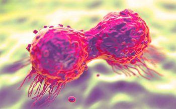 Những điều cần biết về ung thư di căn