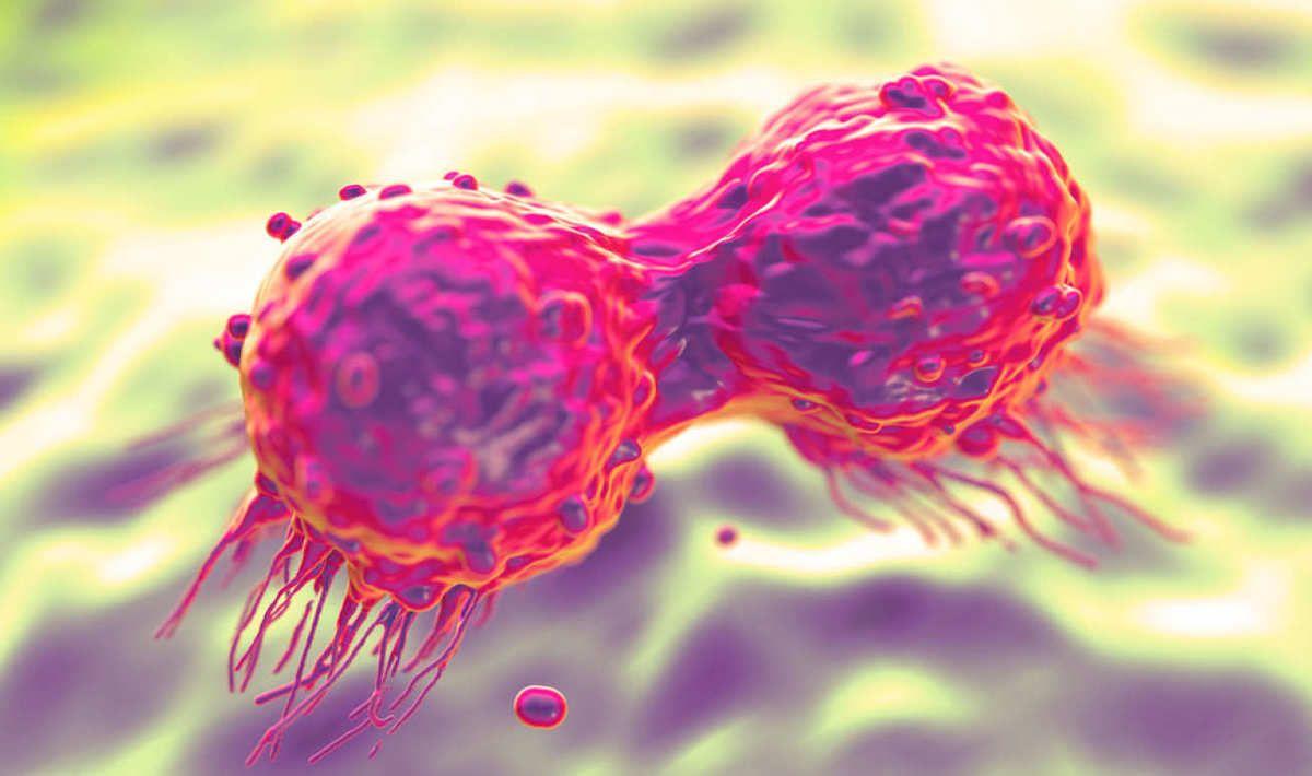 Ung thư di căn là giai đoạn phát triển cuối cùng của bệnh, các tế bào ung thư đã lây lan rộng tới các cơ quan của cơ thể