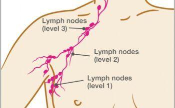 Những điều cần biết về ung thư hạch