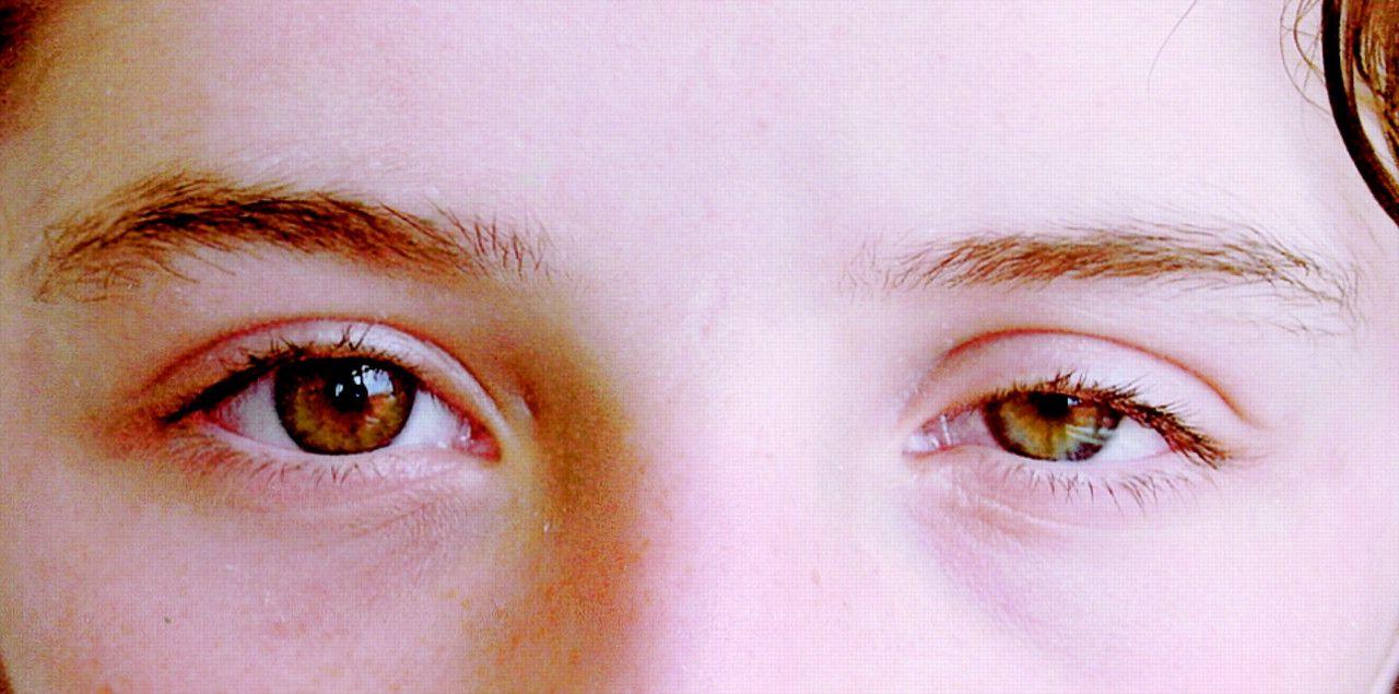 Hiện các nhà khoa học chưa tìm ra nguyên nhân chính xác gây ung thư mắt