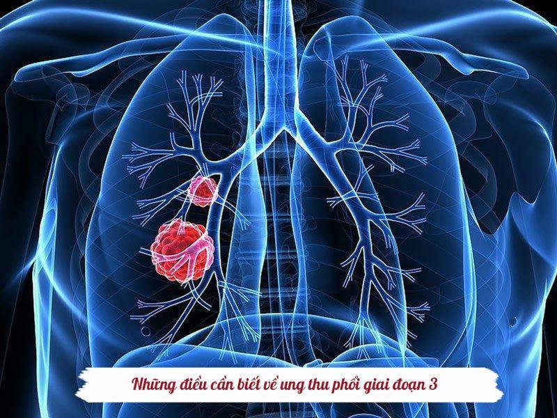 Ung thư phổi giai đoạn 3 cần được điều trị tích cực