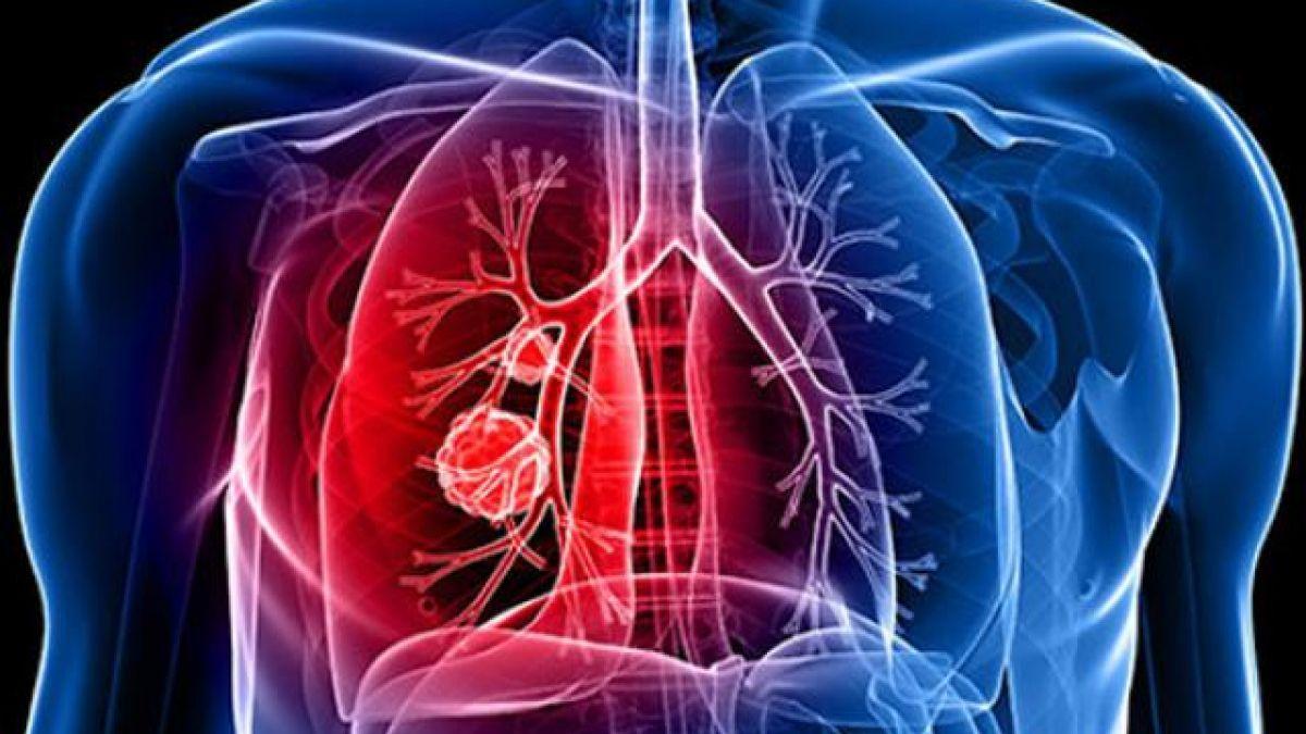 Ung thư phổi giai đoạn 2 đã xuất hiện nhiều triệu chứng rõ ràng hơn giai đoạn 1