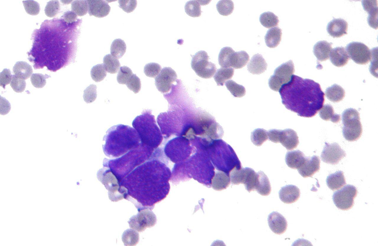 Hình ảnh ung thư phổi tế bào nhỏ