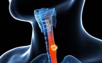 Mắc bệnh ung thư thực quản có chữa được không?