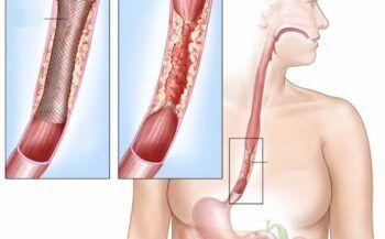Mắc bệnh ung thư thực quản sống được bao lâu?