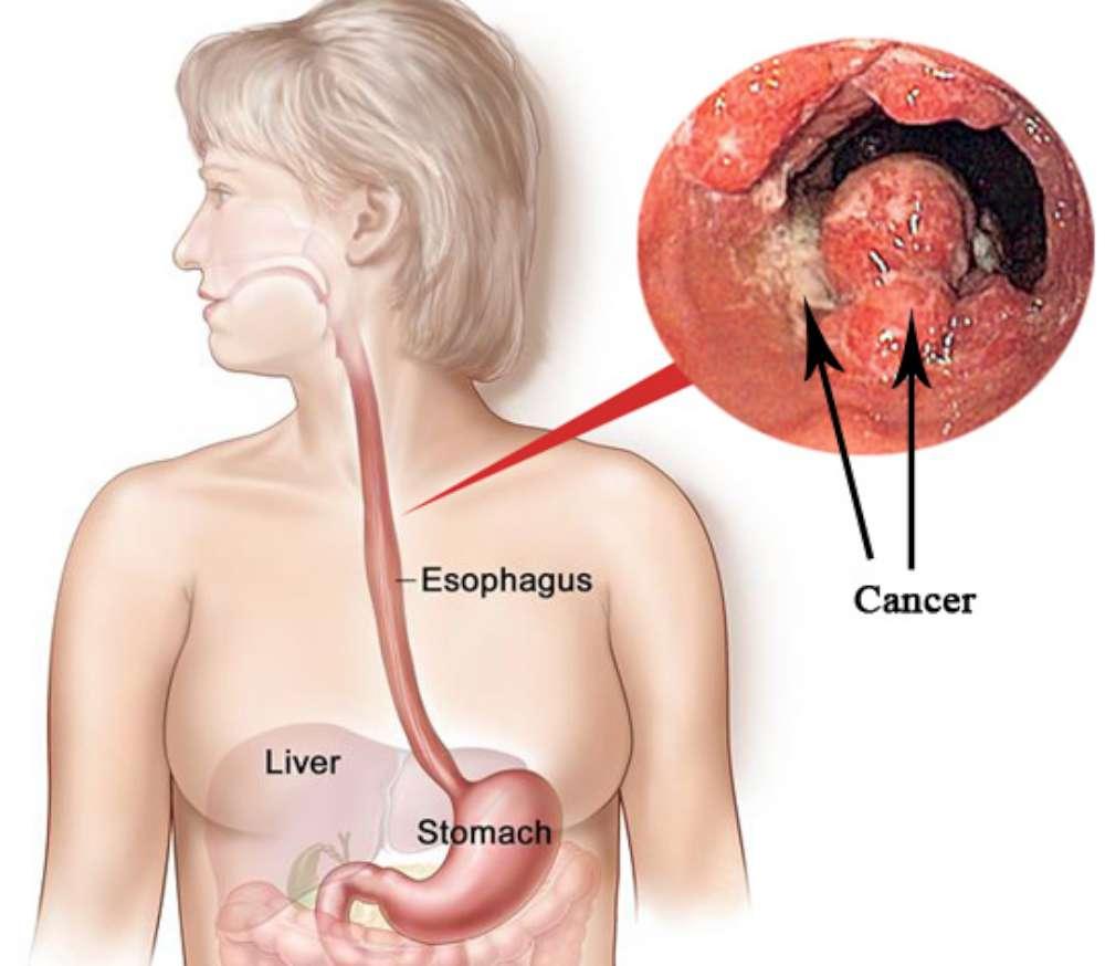 Ung thư thực quản là bệnh lý ung thư phát sinh từ thực quản