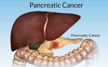 Cách điều trị ung thư tụy giai đoạn cuối