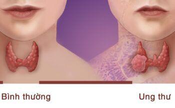 Điều trị ung thư tuyến giáp giai đoạn cuối như thế nào?
