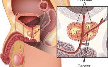 Những yếu tố gây ung thư tuyến tiền liệt